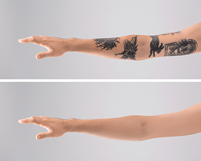 Laser Tattoo Removal | USF Health