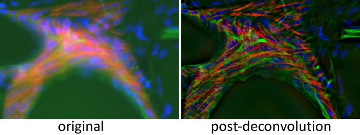deconvolution microscopy
