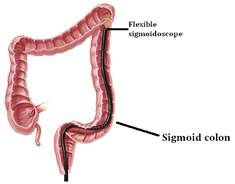 Flexible Sigmoidoscopy